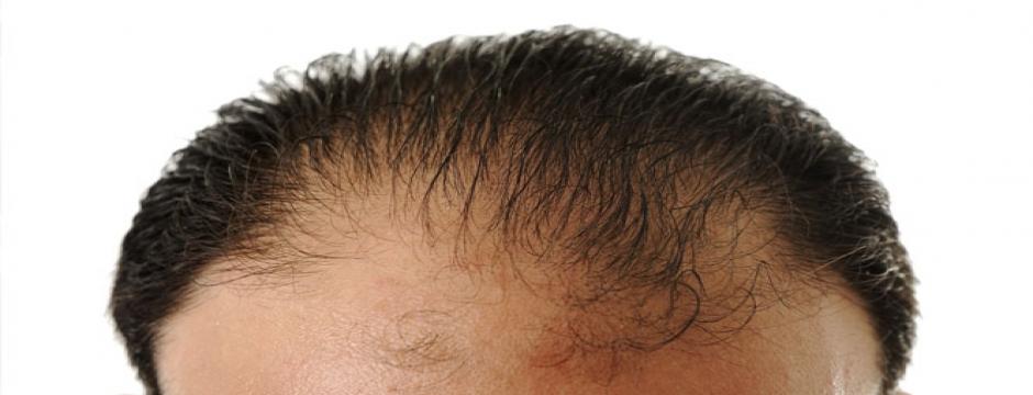 Bunları sık yapıyorsanız saçlarınız dökülebilir