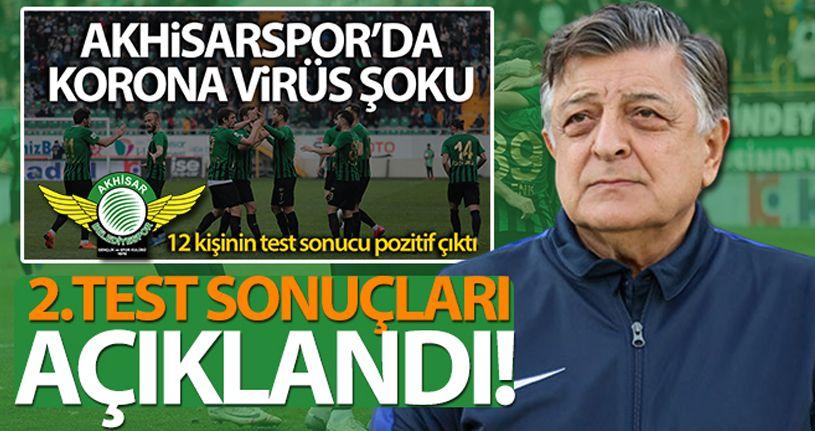 Akhisarspor'da 2.koronavirüs test sonuçları açıklandı
