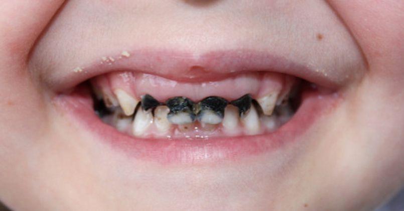 Çocuklarda diş çürüklerinin sebepleri nelerdir