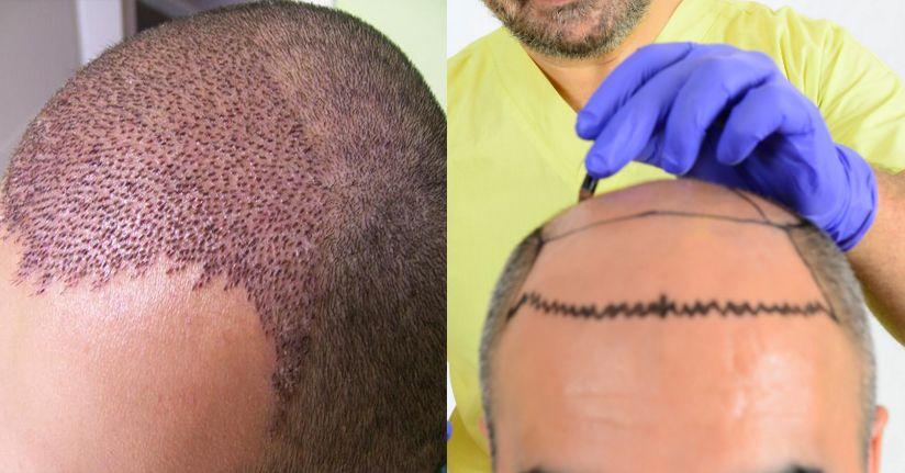 Saç ekimi ve estetikten gelen para 1 milyar doları geçti