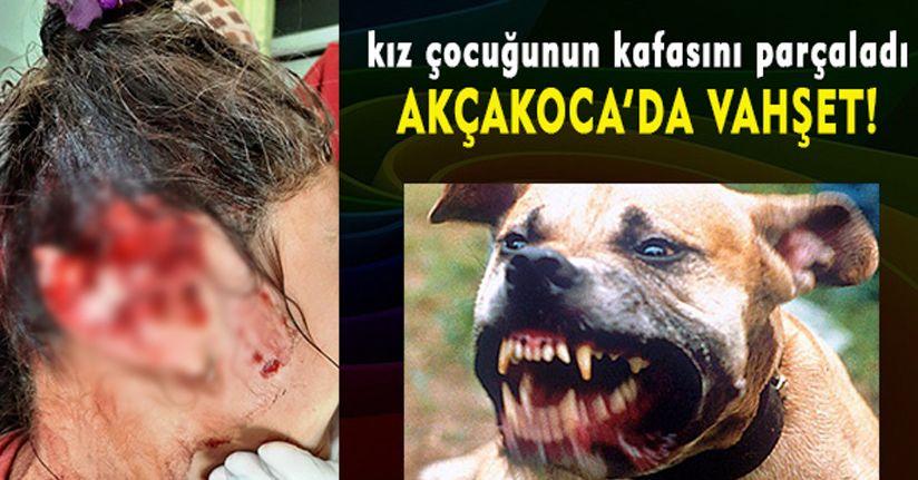 Akçakoca'da Pitbull Vahşeti!.. Kız Çocuğunun Kafasını Parçaladı